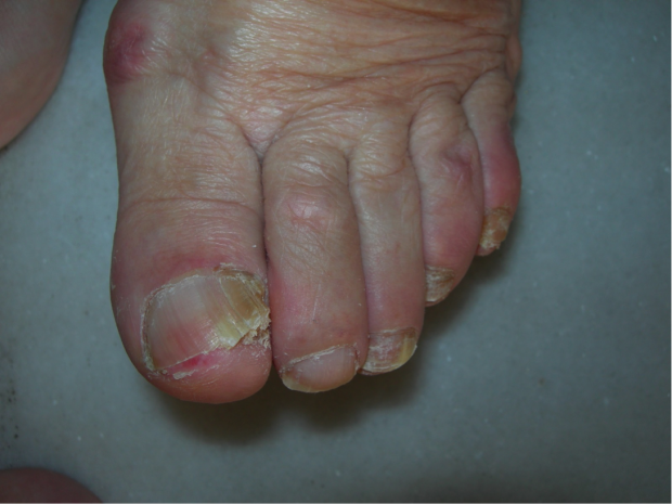 Las contraindicaciones al tratamiento láser del hongo de las uñas
